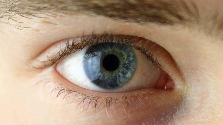 Ocular Herpes Can Be Treated, But Not Prevented With a Vaccine