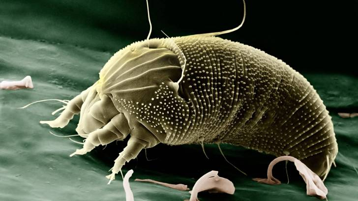 Magnified photo of a dust mite