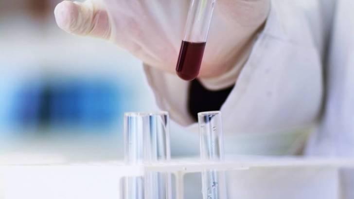 testing blood for HIV